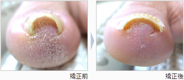 Ingrown toenails correction block / I could correct my heavy pincer ...