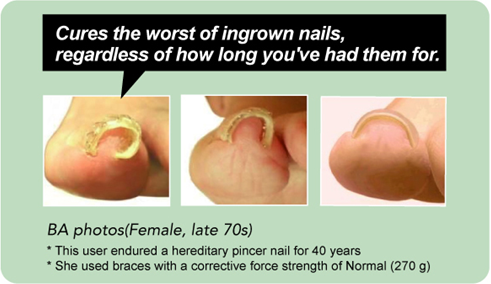 Is There Correcting Effect Of The Diy Ingrown Toenail Item Pincer Block An Product Nails Treatment